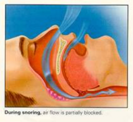 sleep-apnea-1