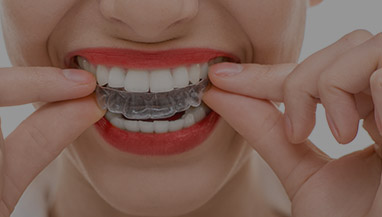 The Real Benefits of Clear Correct Invisible Braces