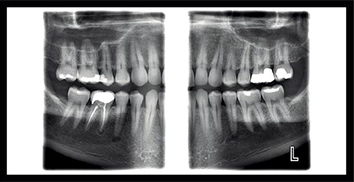 Digital Panoramic X-ray and Extra-Oral Bite Wings